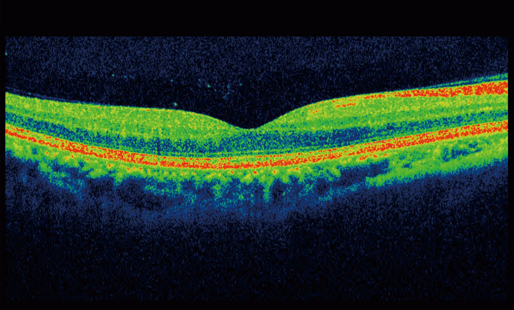 An example OCT scan image.